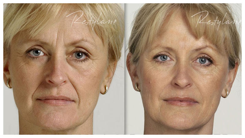 after filler - The Fontmell Clinic