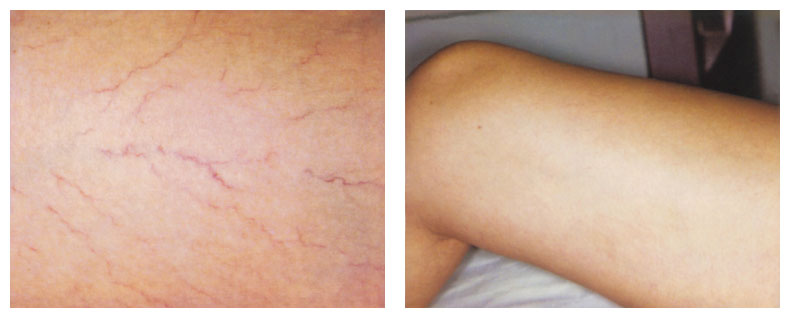 after photo for leg vein treatment using gentle yag laser - The Fontmell Clinic