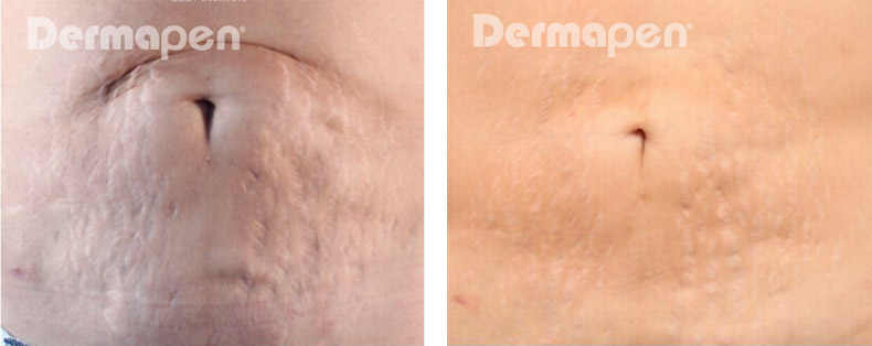 dermapen stretchmarks - The Fontmell Clinic