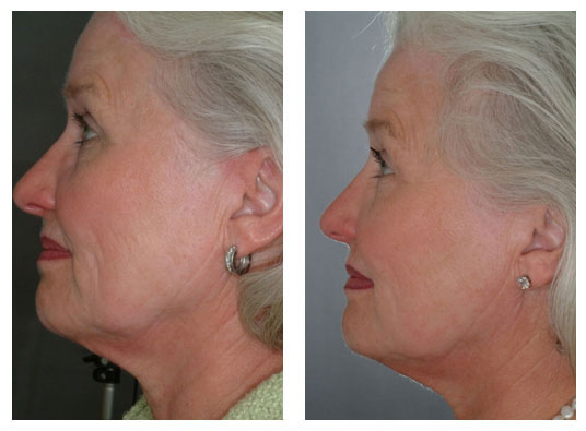 post collagen stimulation using gentle yag laser - The Fontmell Clinic