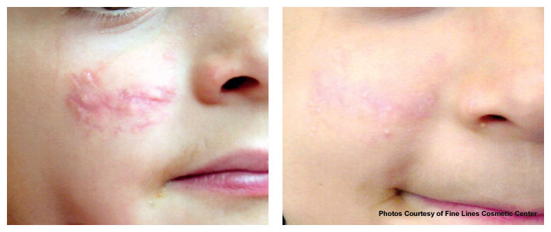 post treatment photo of red scarring using v beam - The Fontmell Clinic
