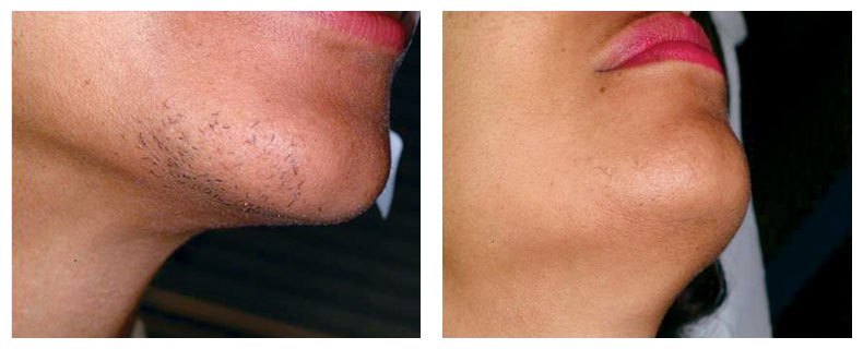pre treatment hair removal face using gentle yag - The Fontmell Clinic