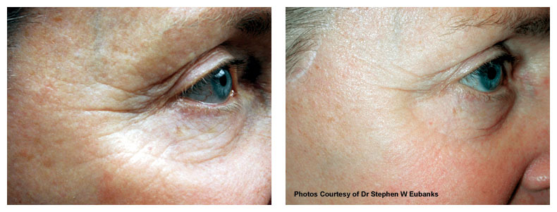 pre treatment photo of wrinkles - The Fontmell Clinic
