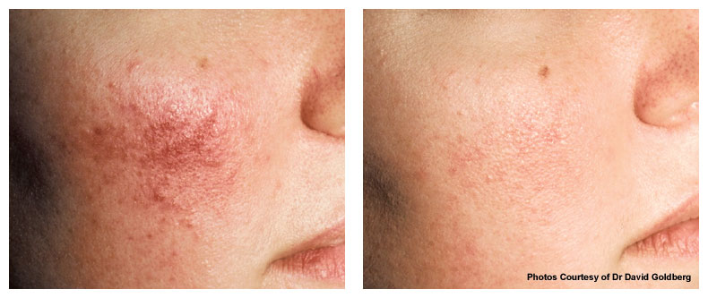 v beam laser pre treatment of rosacea with pigment - The Fontmell Clinic